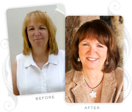 Debra Gilroy Before and After
