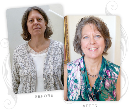 Lori Bedard Before and After