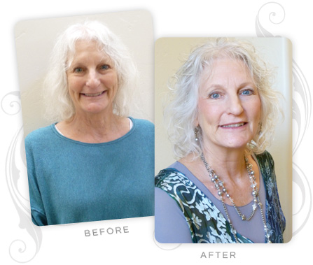Virginia Clarke Before and After