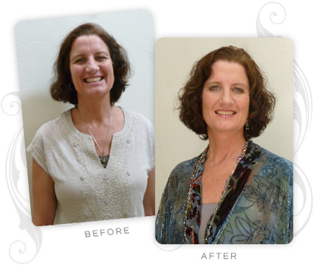 Bettina Langerfeldt Before and After