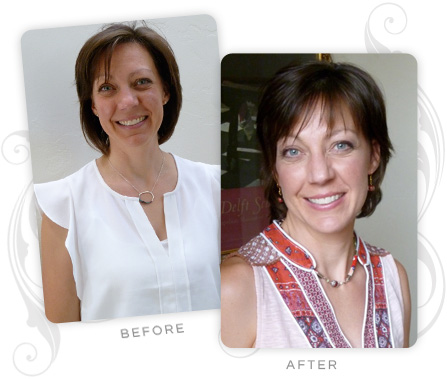 Kristin Keffeler Before and After
