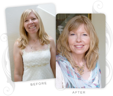 Leslie Cunningham Before and After