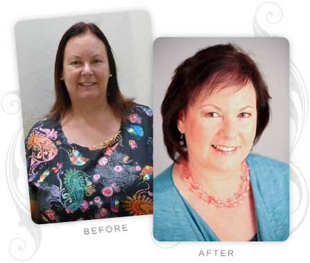 Lynne Katz Before and After
